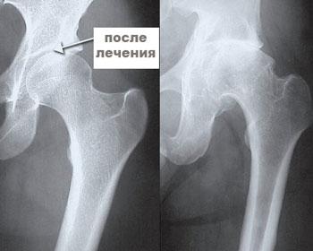 rentgen tazobedrenogo sustava doposle